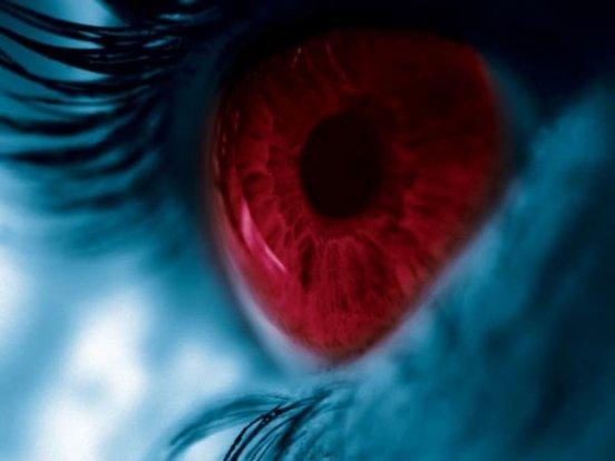 фото из глаз кровь